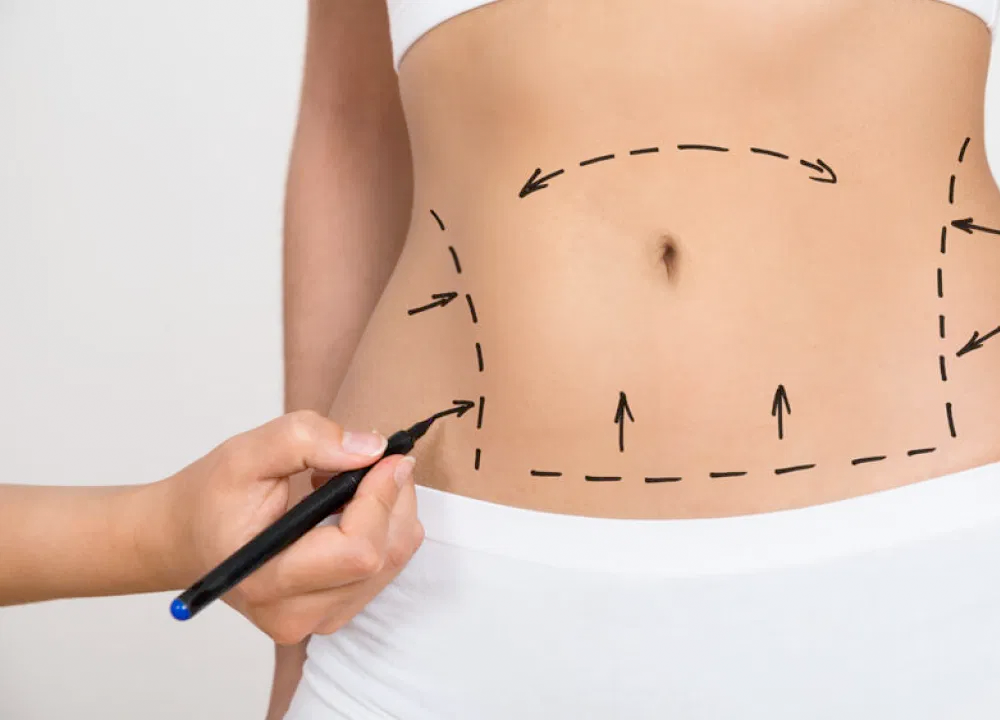 Mulher preparando-se para a abdominoplastia